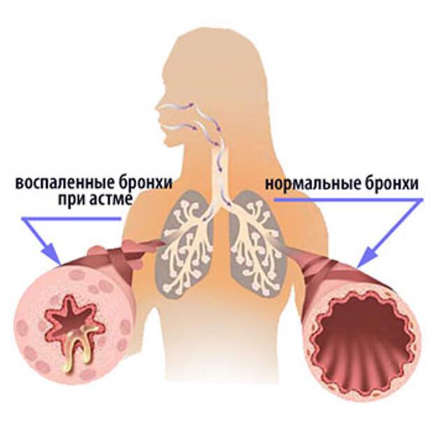 Бронхиальная астма у собак