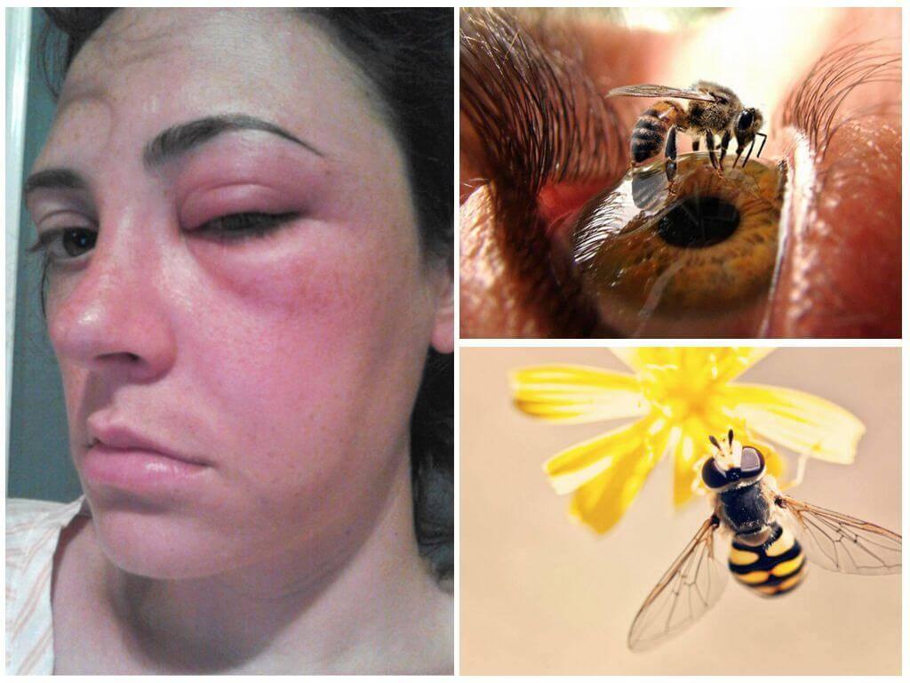Кота укусила оса или пчела: что делать в домашних условиях